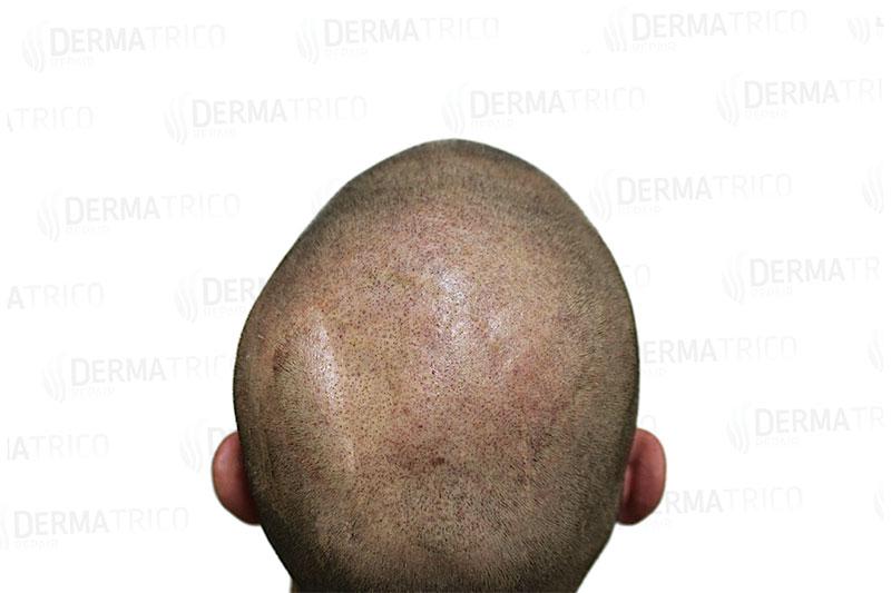 Tricopigmentazione copertura cicatrici post trattamento