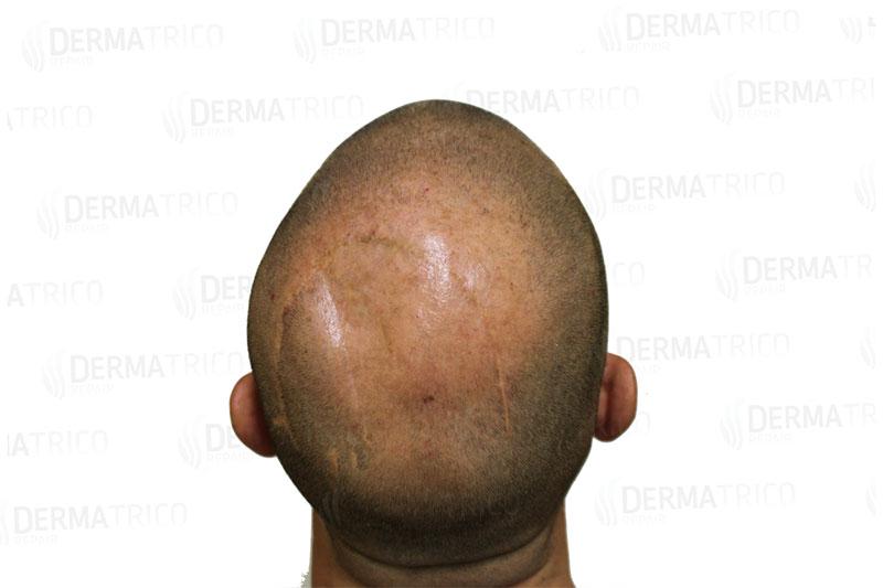 Tricopigmentazione copertura cicatrici pre trattamento