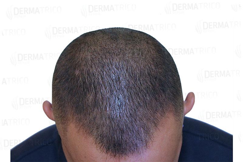 Tricopigmentazione effetto densita post trattamento