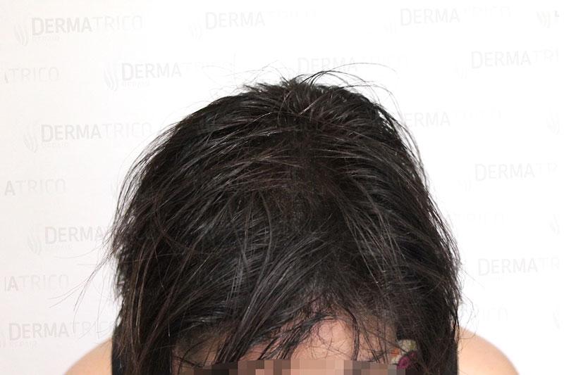 Tricopigmentazione effetto densita post trattamento2