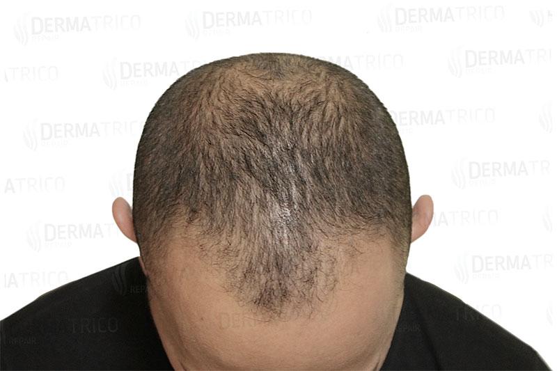 Tricopigmentazione effetto densita pre trattamento