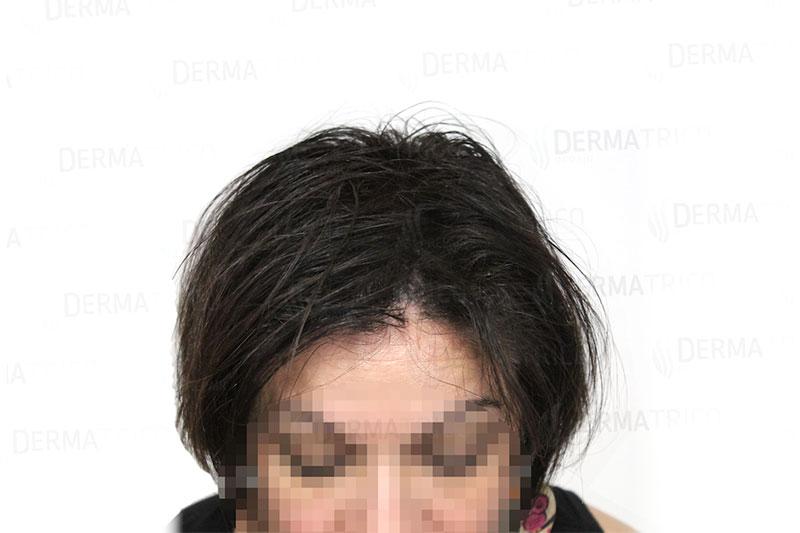 Tricopigmentazione effetto densita pre trattamento2