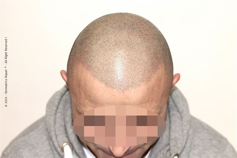 Tricopigmentazione effetto rasato post trattamento