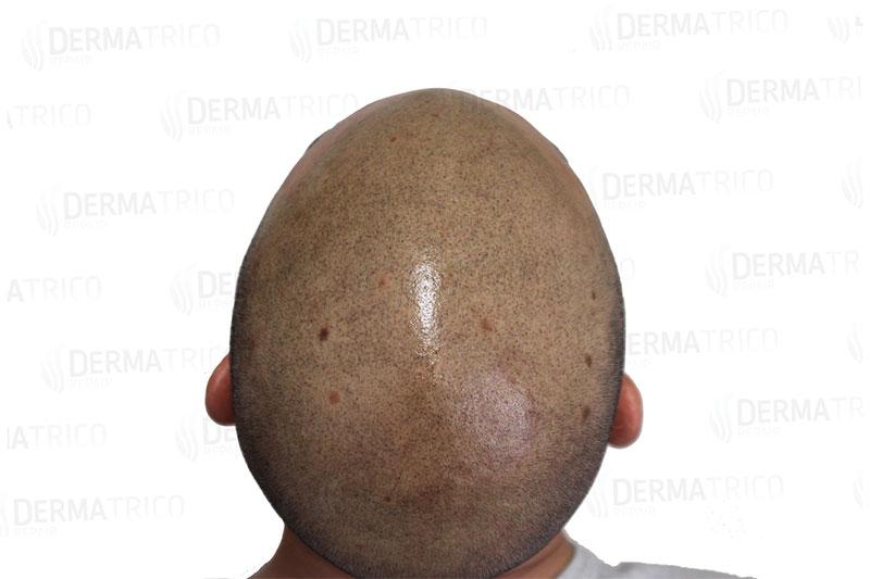 Tricopigmentazione effetto rasato post trattamento2