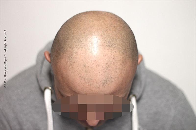 Tricopigmentazione effetto rasato pre trattamento